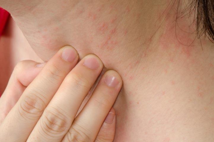 Bệnh Viêm Da Dị Ứng Và Dấu Hiệu